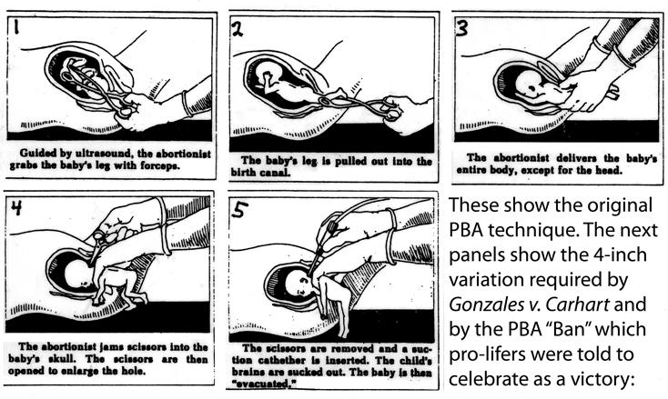 See the ARTL documentation at AmericanRTL.org/PBA-fiasco