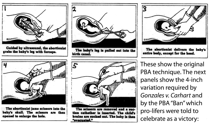 Original partial-birth abortion (PBA) diagrams